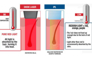 Difference between IPL and Diode laser